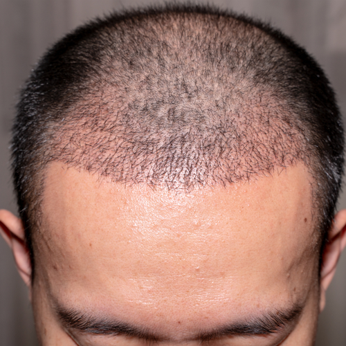 HairMD hair transplant clinical shampoo-serum-tablet -before-after